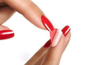 Отслаивание ногтевой пластины